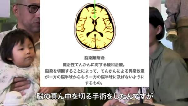 kaitou-ope