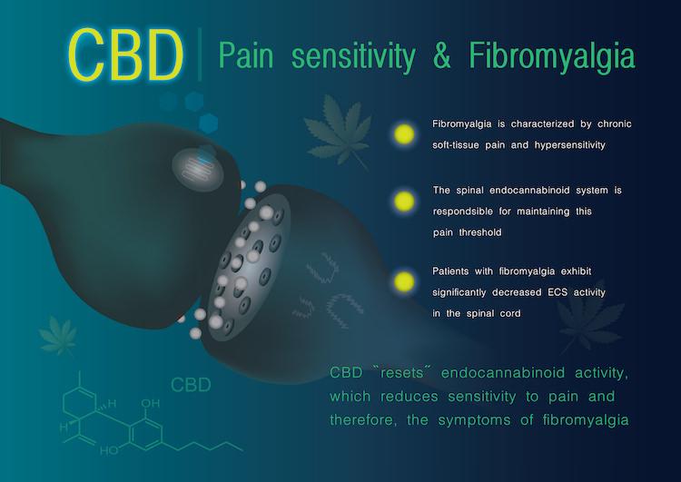 線維筋痛症にCBDは効くのか?アイキャッチ画像